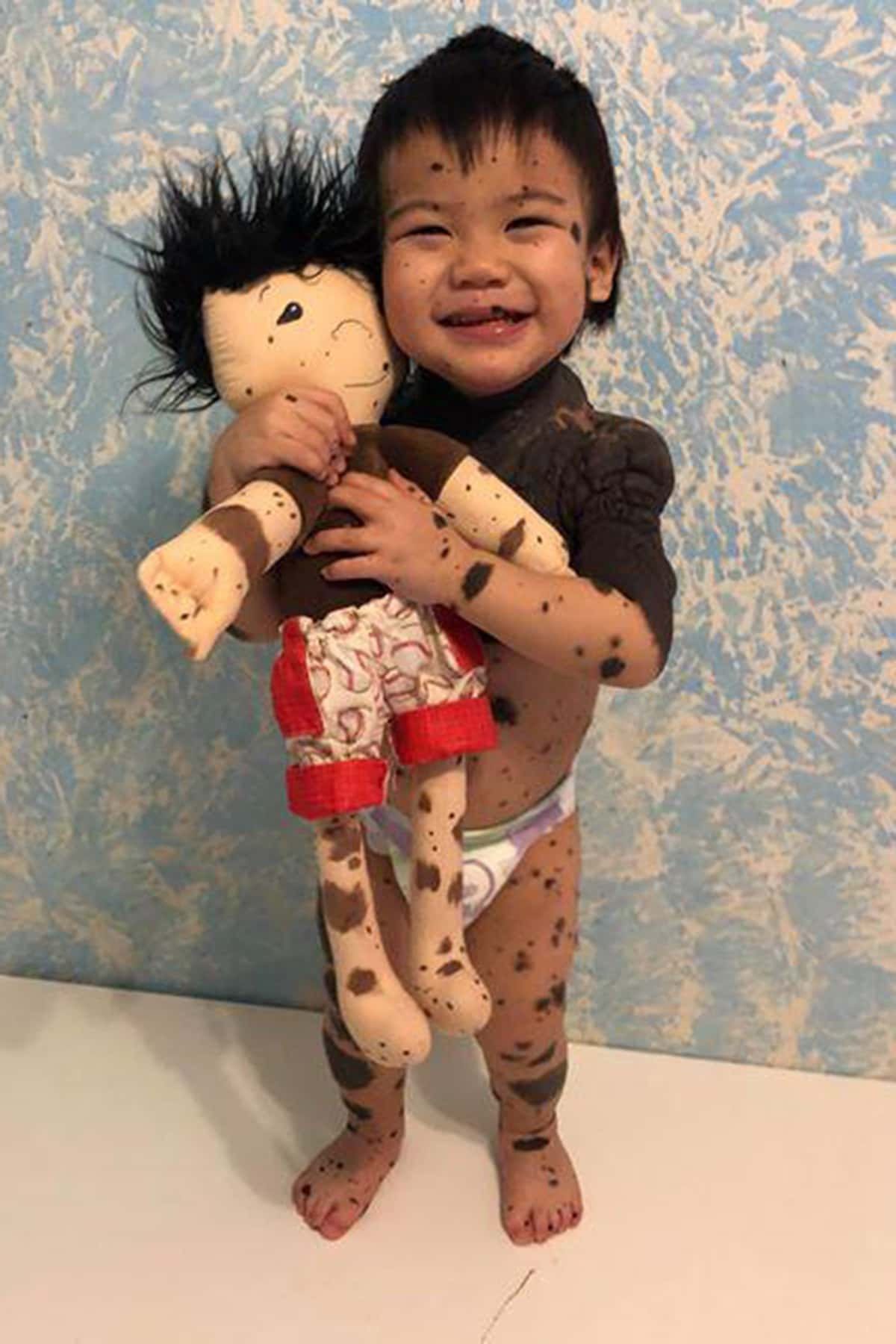 How Children With Disabilities Came To >> Dolls Like Me New Berlin Mom Creates Toys For Children With